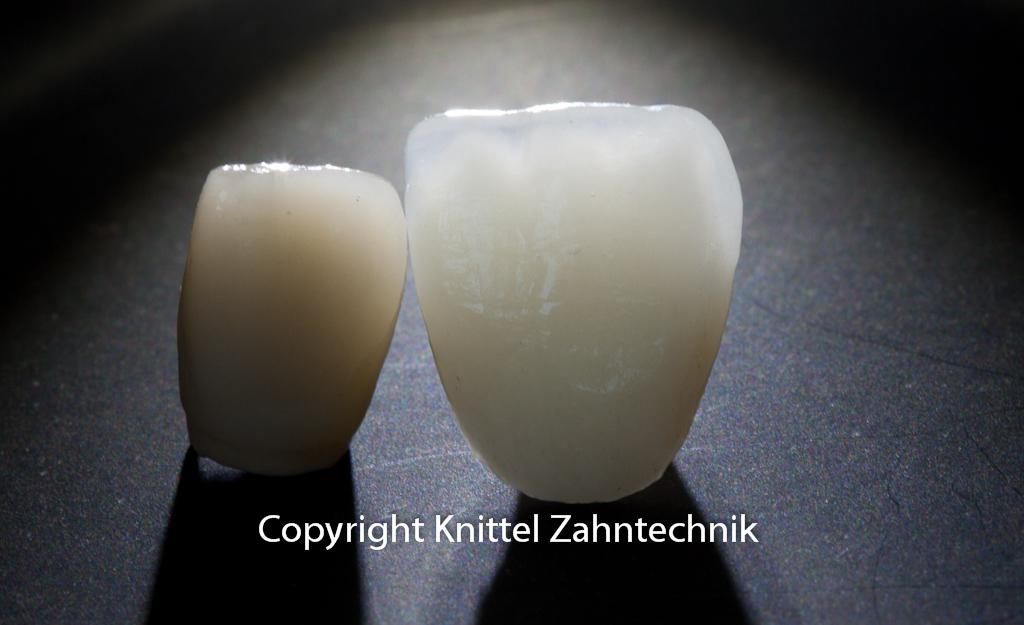 Linke Krone mit Metallhintergrund, rechts eine Vollkeramikkrone. Die Lichtdynamik beeindruckt hier besonders.