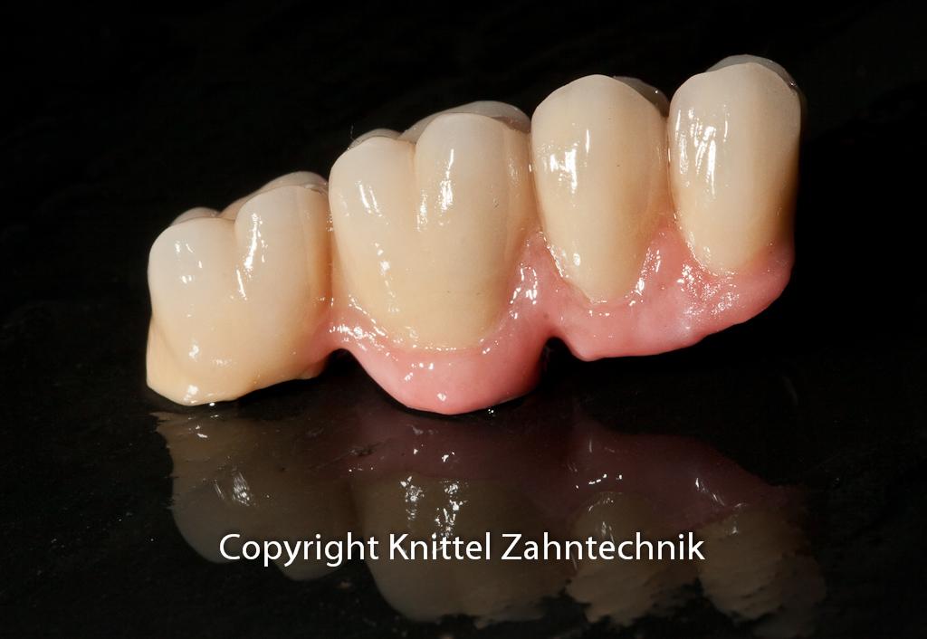 Implantatkeramikbrücke im Seitenzahngebiet mit Zahnfleisch aus Keramik in frontaler Ansicht.